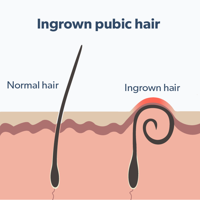 Pubic hair for plucking tips All About