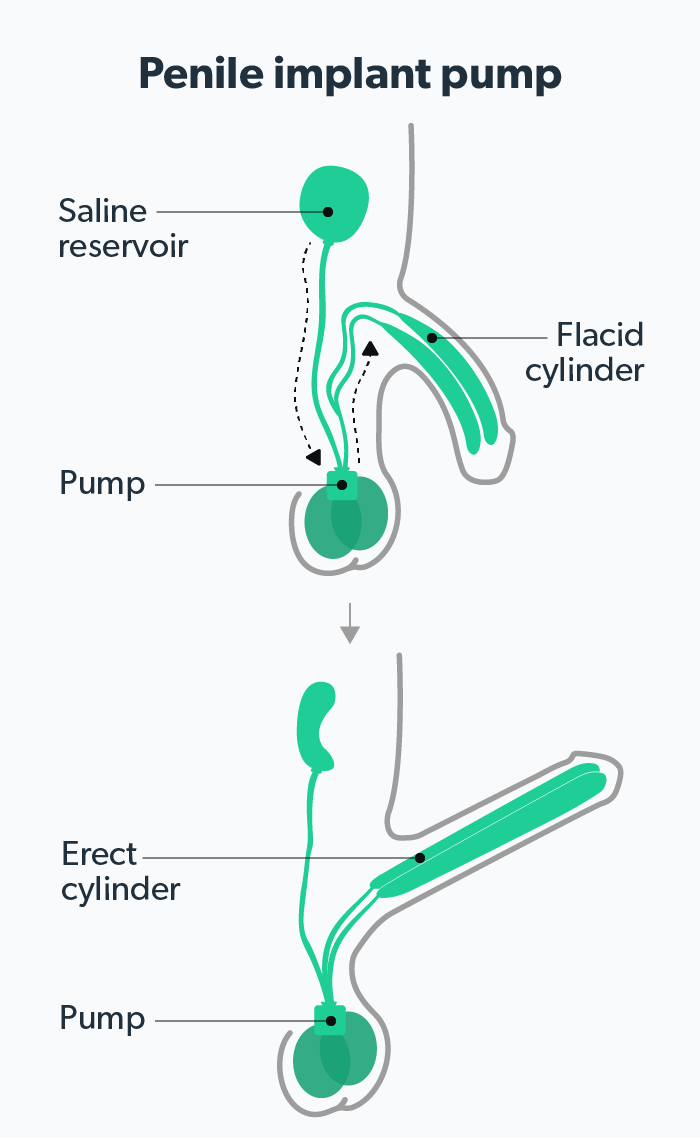 Pump a to penile how use The Ultimate