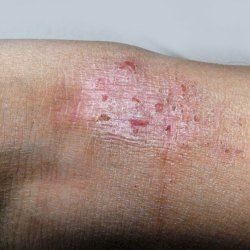 Psoriasis Vs Eczema How To Tell Which Is Which Roman Healthguide