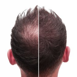 Does Minoxidil Work What The Research Says Roman Healthguide